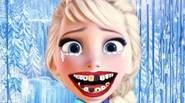 Elsa's got a toothache! Help her and perform a dental surgery to bring back her beautiful smile! Game Controls: Mouse