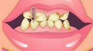 Do you want to become a dentist for a day? Well, try this excellent game in which you have to clear the teeth, then perform whitening procedure and […]